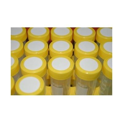 Probówki 50 ml - 20 sztuk w żółtym statywie, TPP, 1 szt. w op., 10 szt. w kartonie